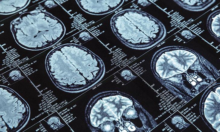 دراسة علمية تكشف: الدماغ يشعر بالموت قبل حدوثه