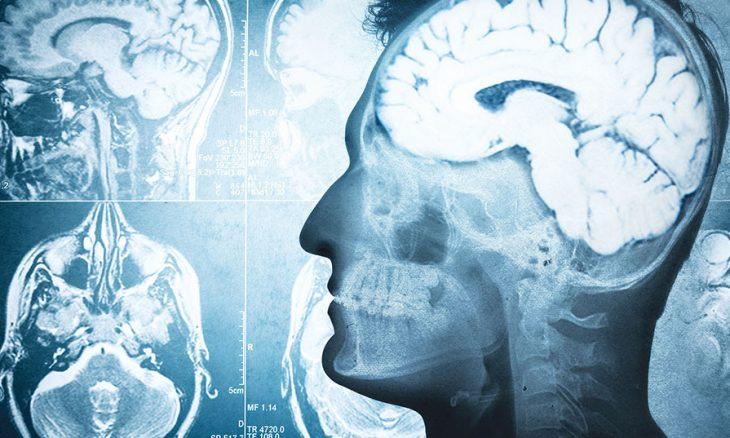 هذا ما يحدث للدماغ في آخر لحظات الحياة  علماء يبدأون بحل لغز الموت